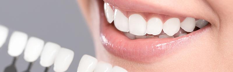 Facette dentaire Rennes
