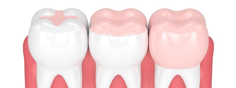 Dentiste Rennes